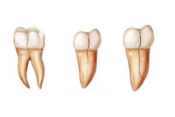 Процедура по сохранению зуба с трещиной корня вместо удаления
