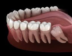Зубы мудрости, удалять не обязательно