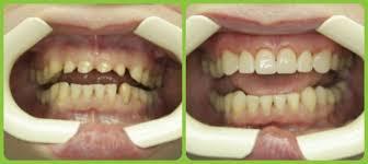 Реставрация зубов фотополимерами – что это такое?