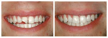 Наращивание зубов: сколько стоит и как делают?