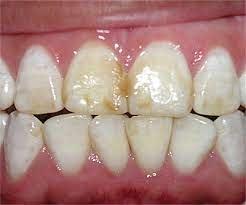 Лечение флюороза зубов