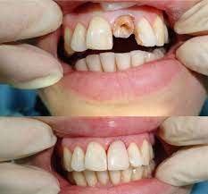 Как восстановить передние зубы