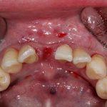 Клиническое применение имплантата TS III CA 3 мм в переднем отделе нижней челюсти