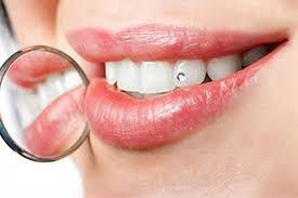 Преступления, которые мы совершаем против наших зубов
