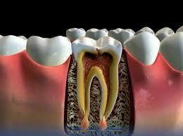 Лечение воспалившегося зуба инновационными методами