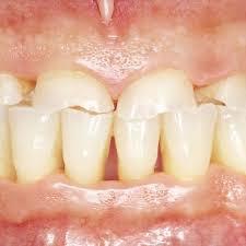 Этиология и функциональные признаки патологической стираемости зубов