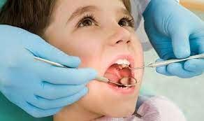 Молочные зубы признаны ценным источником стволовых клеток