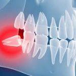 Удаление ретинированных и дистопированных зубов