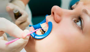 Новый метод лечения и профилактики кариеса в начальной стадии с помощью лазера
