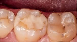 Пломбировочные материалы и зубные пломбы