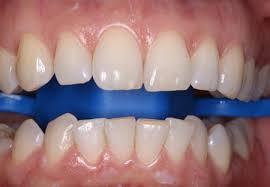 Эта еда поможет отбелить потемневшие зубы