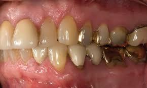 Клинические проявления непереносимости металлических зубных протезов