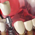 """""""D.E.C."""": эффективная имплантация зубов в Минске"""