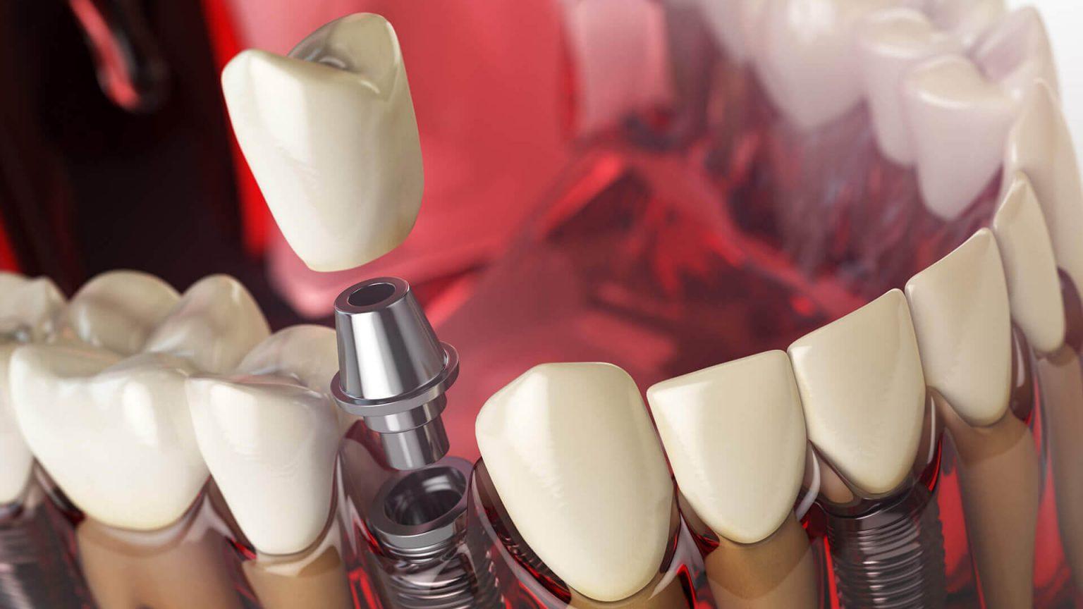 «D.E.C.»: эффективная имплантация зубов в Минске