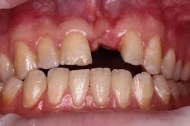 Как сохранить костный гребень у детей после травмы передних зубов