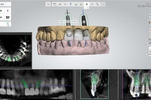 Оценка точности хирургических шаблонов, изготовленных методом CAM, при установке имплантатов
