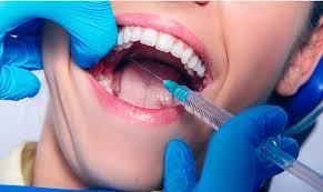 Инъекционные вмешательства в стоматологии