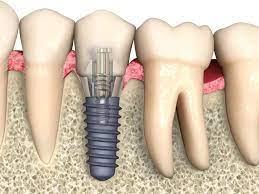 Что нельзя делать, если во рту стоят имплантаты