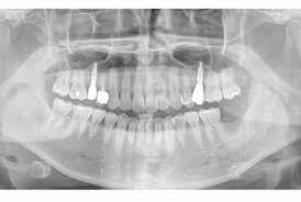 Полная адентия верхней челюсти — 12-летние результаты несъемного протезирования с опорой на имплантаты. Имплантаты Osstem TSIII: новый подход к лечению.