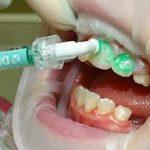 Лечение кариеса без сверления зубов