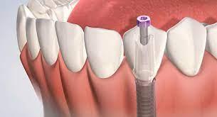 Подготовка к операции по установке дентальных имплантов