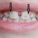 Почему у ребенка крошатся зубы