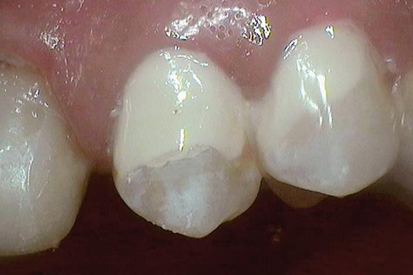 Стеклоиономерные цементы: материалы выбора в детской стоматологии