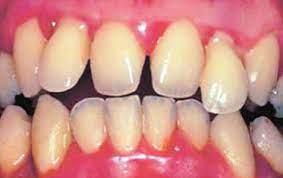 В клетках зуба обнаружили белок, который может стать основой для терапии гиперчувствительности дентина