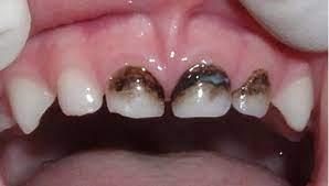 Серебрение и еще 6 процедур, которые нельзя делать с детскими зубами