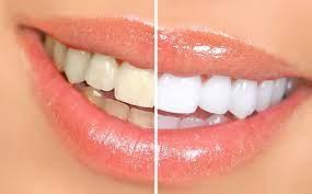 Больше не белые: продукты, которые портят цвет зубов