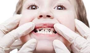 Не только кариес: 6 причин, почему у малыша болят зубы