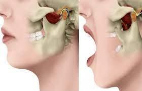 Лечение челюсти