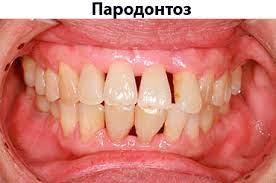 Симптомы и причины развития пародонтоза