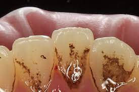 Черный зубной налет