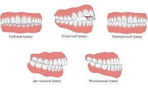 Неправильный прикус зубов — причины и последствия