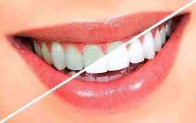 Реставрационное отбеливание зубов