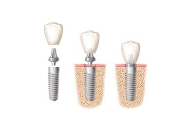 Oraltronics