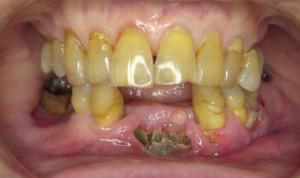 Некроз челюсти — симптомы и лечение