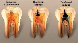 Начальный кариес зубов — первый тревожный звонок