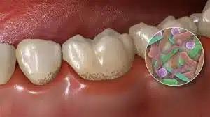 Описали новый тип воспалительной реакции на деятельность патогенных бактерий в составе зубного налета