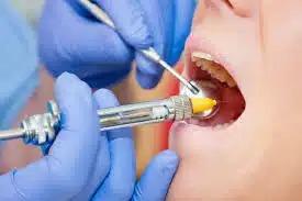 Современная анестезия в стоматологии