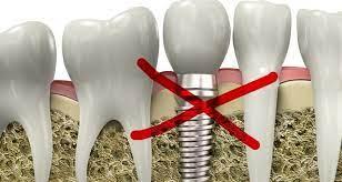 Противопоказания к имплантации зубов