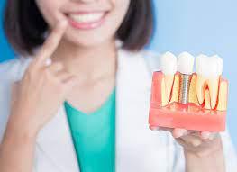 После имплантации зубов – рекомендации и уход