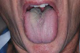 Ингибитор ферментов может послужить основой для лечения сухости слизистой оболочки полости рта