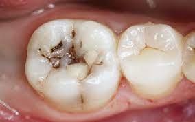 Исследования, посвященные этиологии и патогенезу кариеса зубов