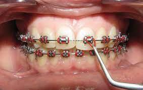Новый стоматологический адгезив предотвращает развитие кариеса вокруг брекетов