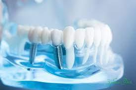 Производители имплантов зубов: обзор ведущих стран-экспортеров