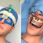 Исправление прикуса хирургическим путем