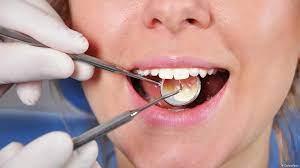 Российские ученые проанализировали состояние зубов человека по-новому