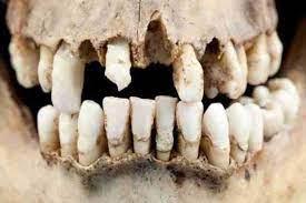 Древняя челюсть демонстрирует удивительный рисунок износа зубов